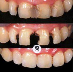 Harga tambal gigi depan