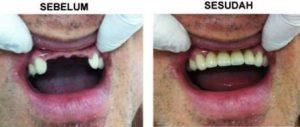 harga gigi palsu permanen depan