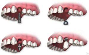 harga gigi palsu permanen di dokter gigi