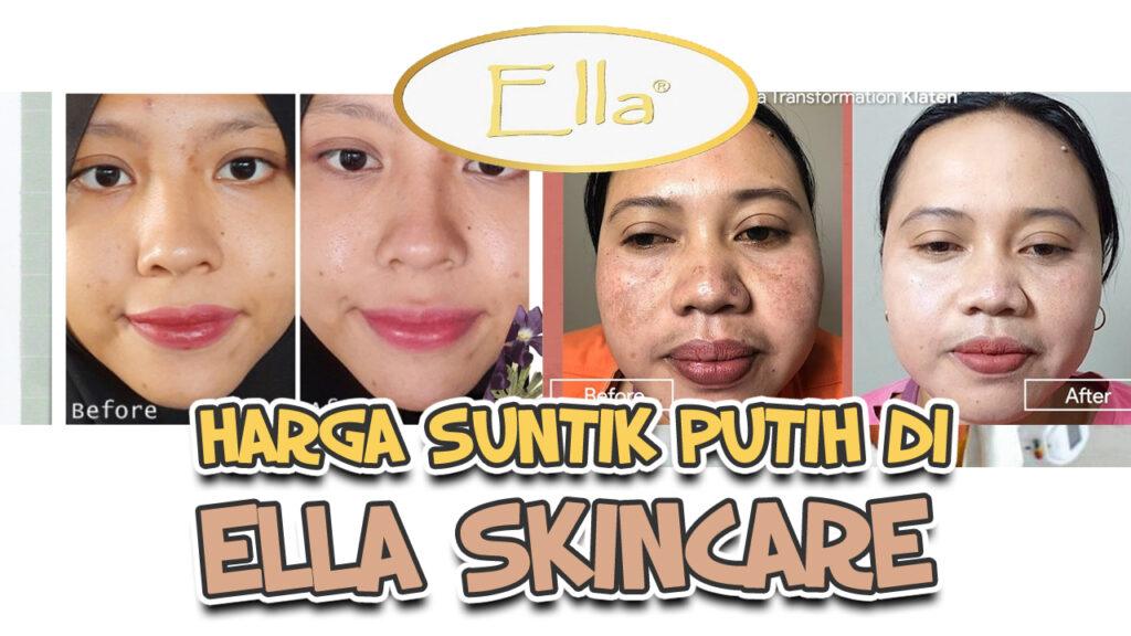 Harga Suntik Putih di Ella Skin Care