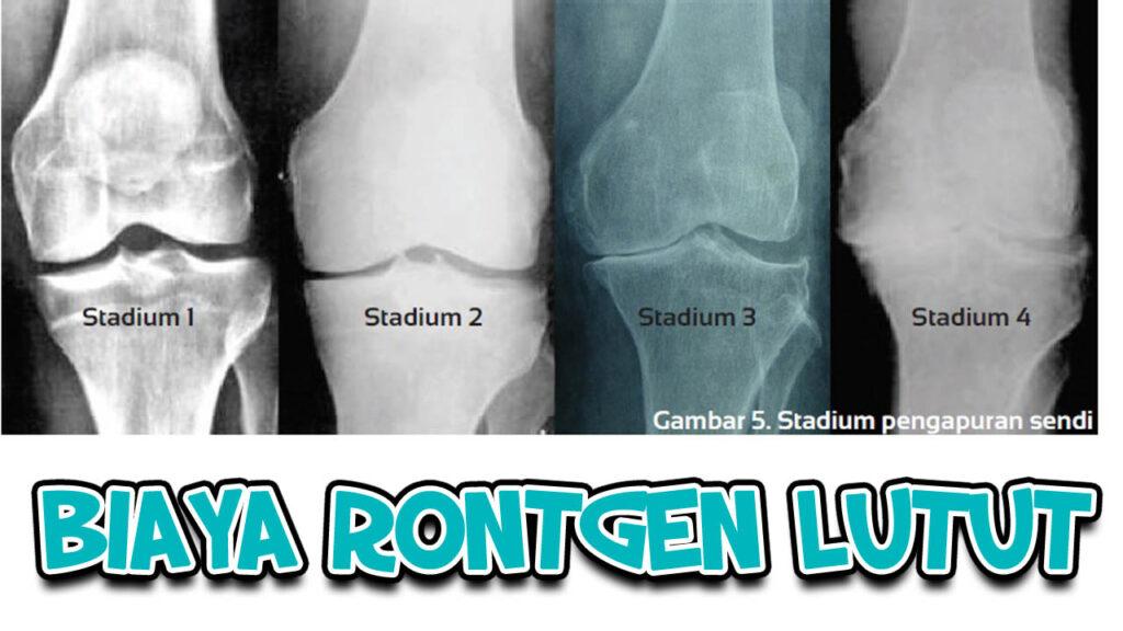 Biaya Rontgen Lutut