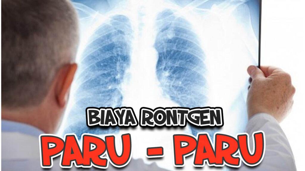 Biaya rontgen paru paru