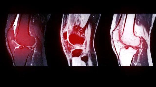 Proses Rontgen Lutut Pada cidera ligamen atlit