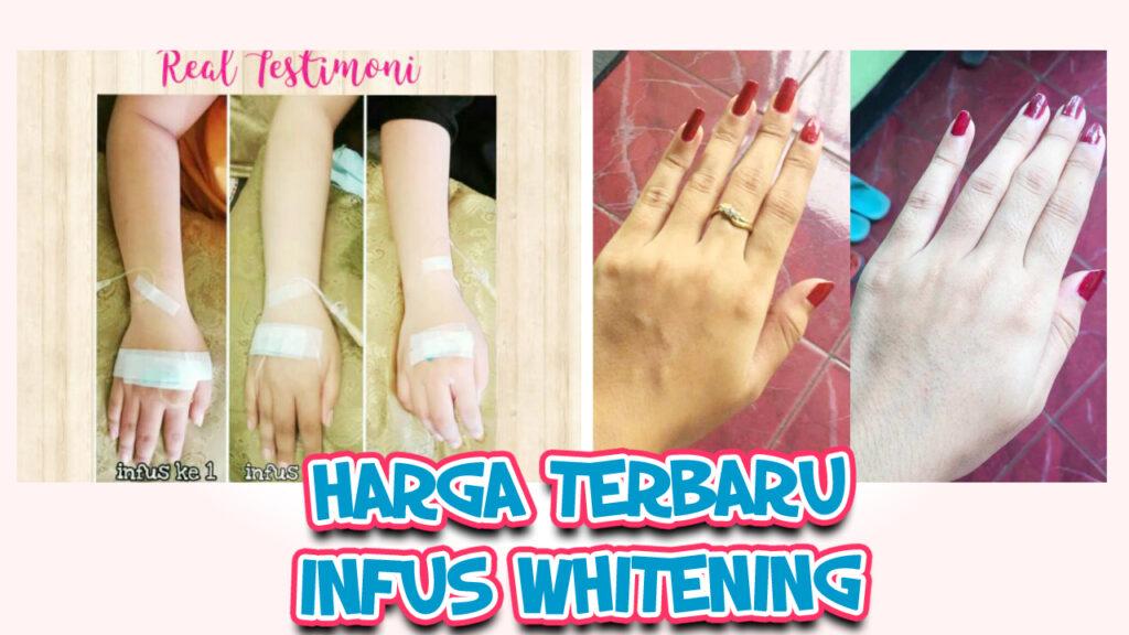 Harga infus whitening yang permanen